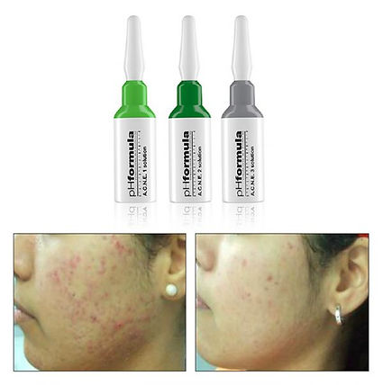 treatment_ACNE-600x604.jpg