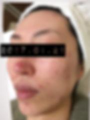 六本木エンビロン症例5