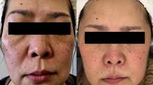 たるみ、シワ、乾燥肌、シミ 1年後のお肌の変化