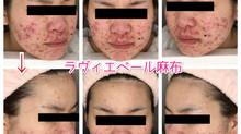 ニキビ肌もエンビロン。1ヶ月で肌は変わる⁉️