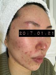 六本木エンビロン症例3