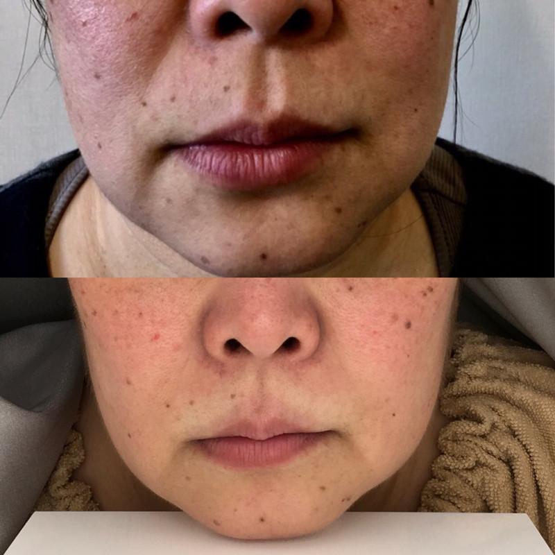 正面のお顔の変化2