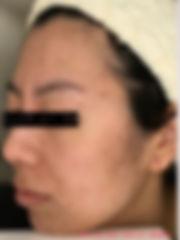 六本木エンビロン症例7