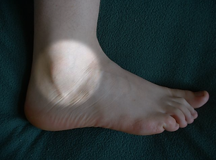 Lateral Ankle Instablility.png