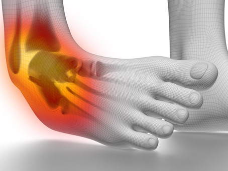What Are Impact Ankle Fractures: Examples & Treatment