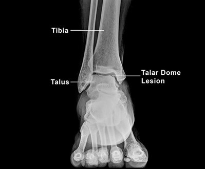 The Softening & Breaking of Your Ankle's Cartilage - What You Need to Know