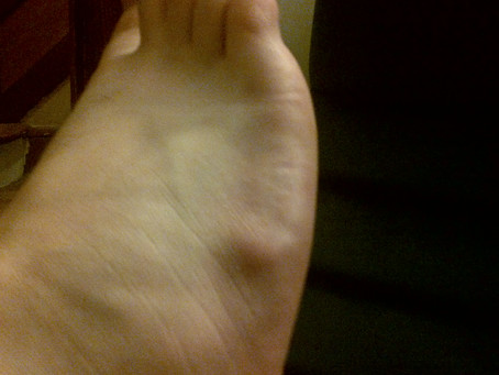 Ganglion Cysts In The Feet