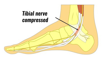 TTS & Pain: Recognizing Tarsal Tunnel Syndrome - What It Is & When You Should See a Podiatrist