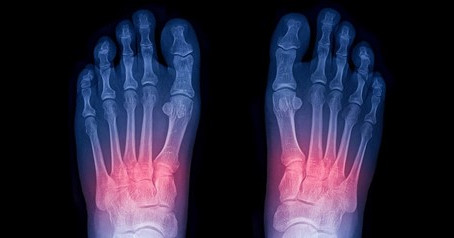 Lisfranc Injury: A Common Midfoot Fracture That Disrupts Your Ability to Walk