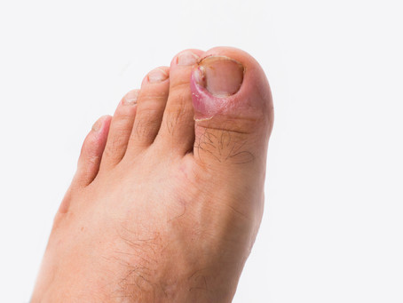 What Are The Cause(s) of Ingrown Toenails & How Do You Fix Them?