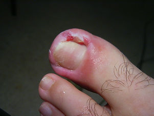 ingrown toenail 1.JPG