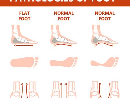 Foot Arch Health