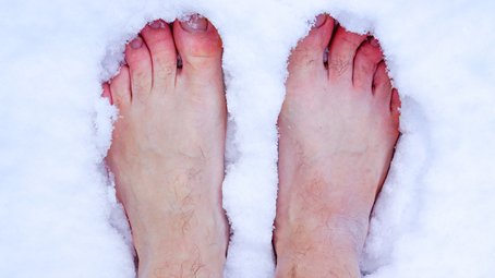 Chilblains: Everything You Need to Know About These Itchy Spots of Inflammation
