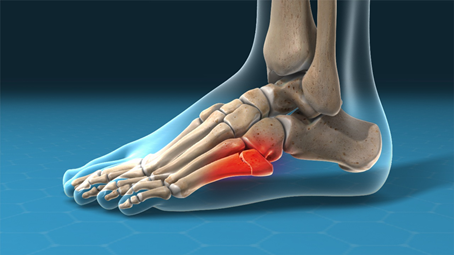 What You Need to Know About Jones Fractures: Causes, Symptoms, Treatment, & Who Is Likely to Get One