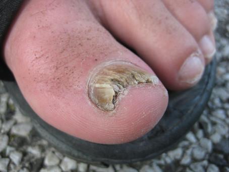 Toenail Fungus Removal