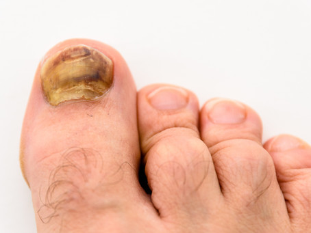 Have Hammertoes? Your Guide to What They Are, Prevention, and Treatment Options