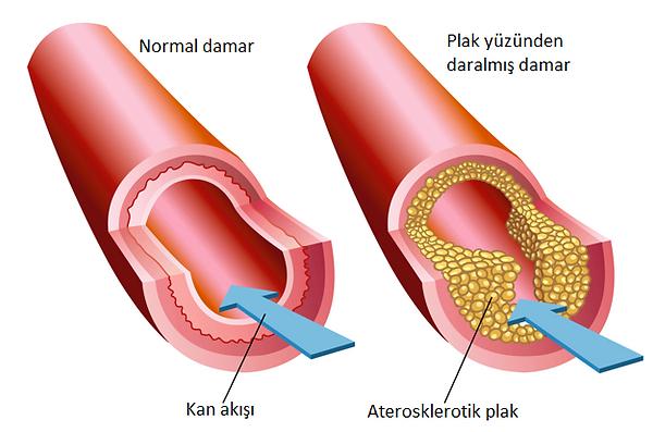 kolesterol-plak-2.png