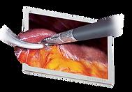 Gastrectomy 어플.png