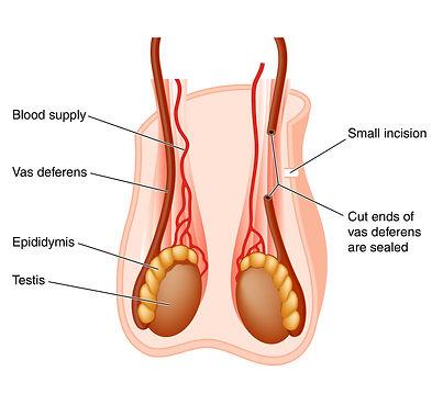vasovasostomia ou reversão de vasectomia