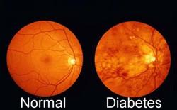 Diabetic and normal eye