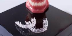 preguntas-frecuentes-ortodoncia-invisali