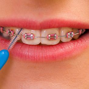 7 consejos sobre ortodoncia...