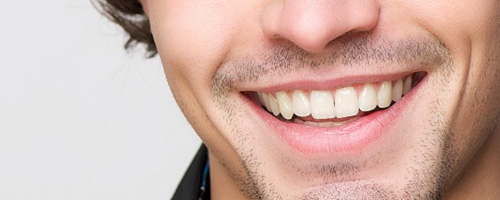sonrisa-hombre-arganzuela-dentista