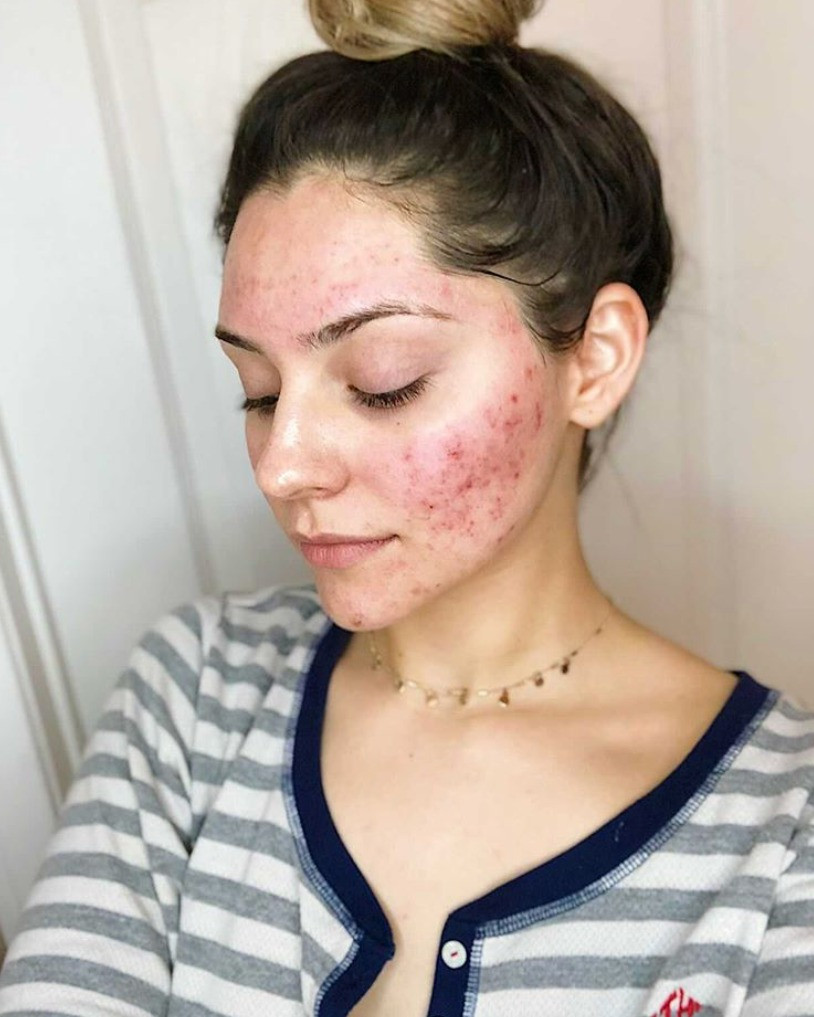 Before and After Acne Photo Estie Bestie