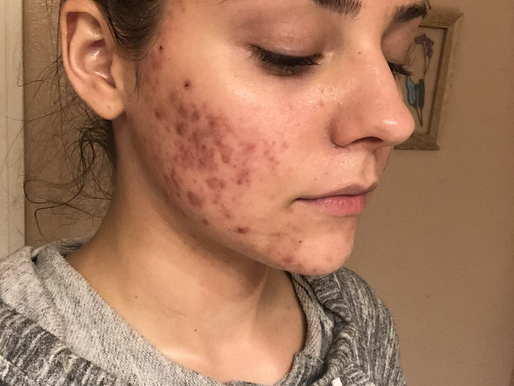 How to Even Skin Tone After Acne Trauma