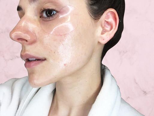 How I Got Rid of My Acne!