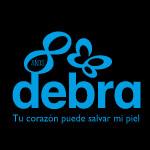 Programa 30 - Debra - Piel de Mariposa