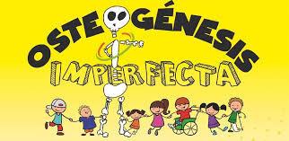 Programa 182 - Fundación Ahuce - Osteogénesis Imperfecta