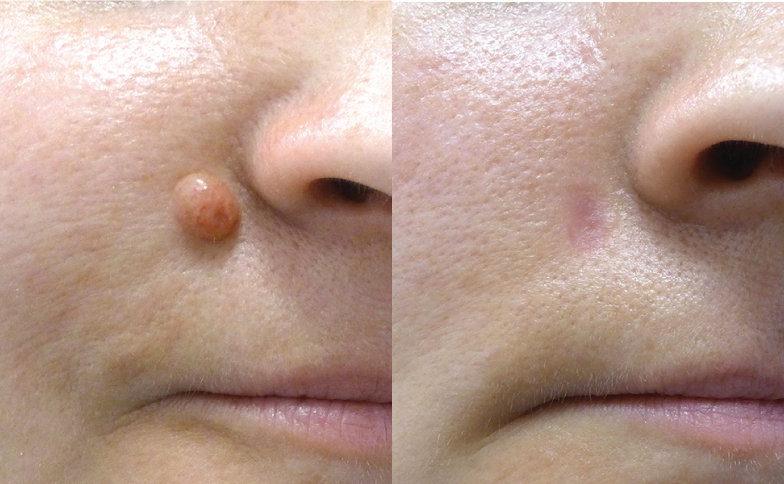 Skin Blemish Removal Consultation
