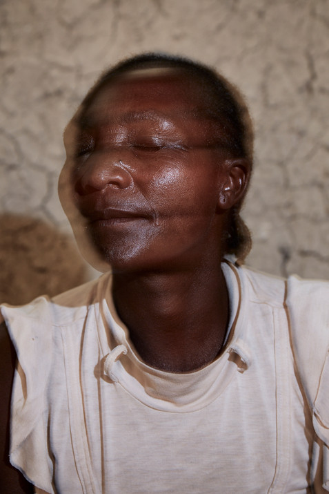 Portrait of Frankhilde Katumbu Haingura (48), a person living with dementia from the Kavango tribe, at her ancestral home in Siya, Rundu. Haingura is often referred to as the 'witch of Siya' by her community and was brutally attacked and left for dead by her neighbours 8 years ago. 8 October 2020
