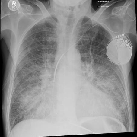 Lungeødem – å drukne hjemme i stua