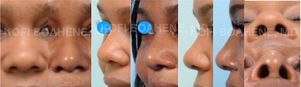 AA rhinoplasty Boahene .png