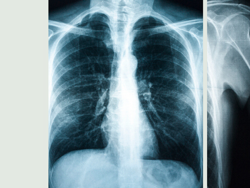 i was proud of my bronchitis | Anonymous