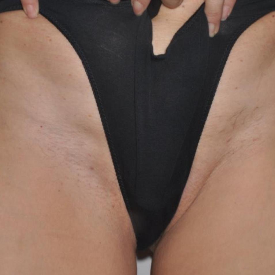 Motus X - Bikini 2 - After.png