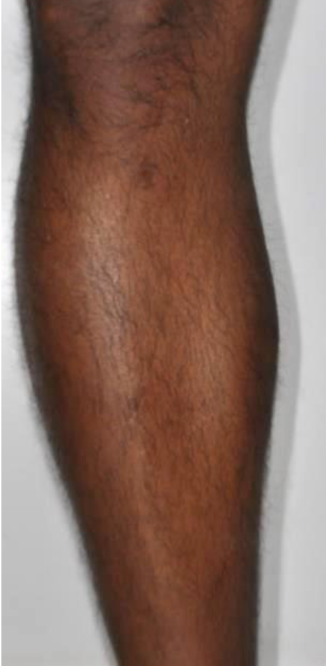 Motus X - Leg - Before.png