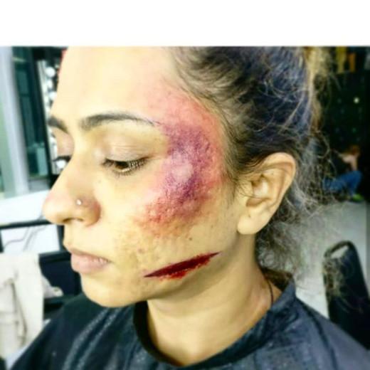 Bruises 🖤  #photoshoot #fashionblogger