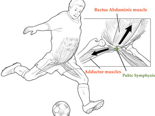 Soccer Pains