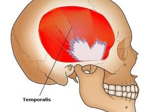 O Temporalis! O Headache!