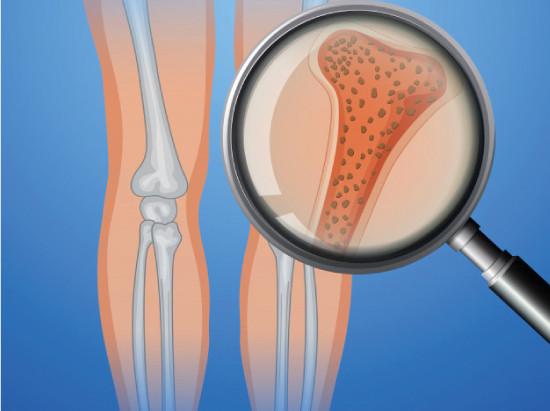 Osteoporosis, la enfermedad silenciosa