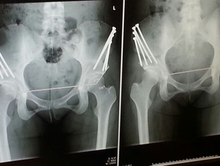 Post surgery Hip Reconstruction