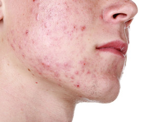 Acne can be treated