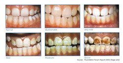 Different levels of fluorosis