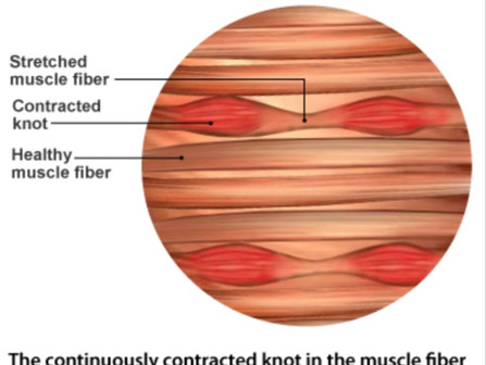 BENEFITS OF MYOFASCIAL RELEASE
