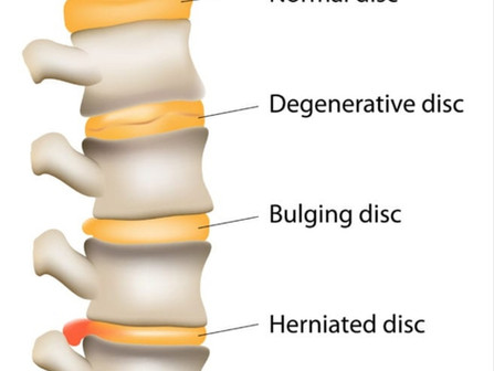 Strain Injury to the Spine!