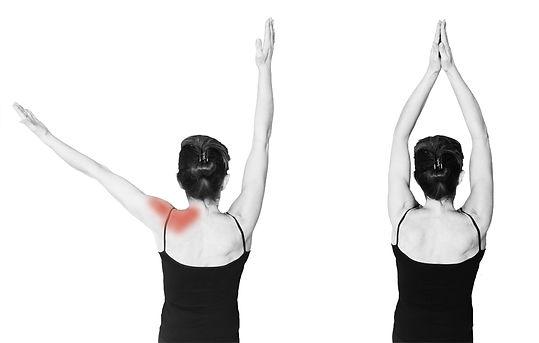 une douleur de l'épaule peut limiter ou rendre douloureux l'élévation du bras