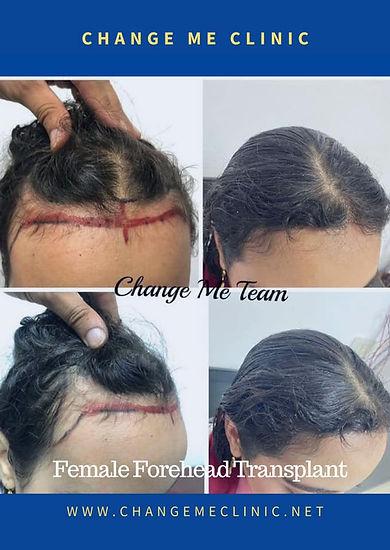 زراعة شعر للسيدات